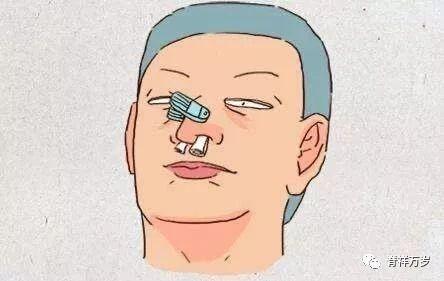 副 鼻腔 炎 頭痛